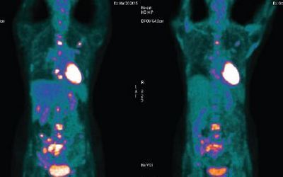 NUCLEAR MEDICINE - PET/CT SCANNER